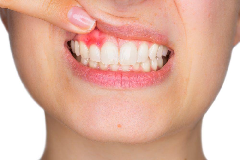 ENCÍAS INFECTADAS: Gingivitis y periodontitis