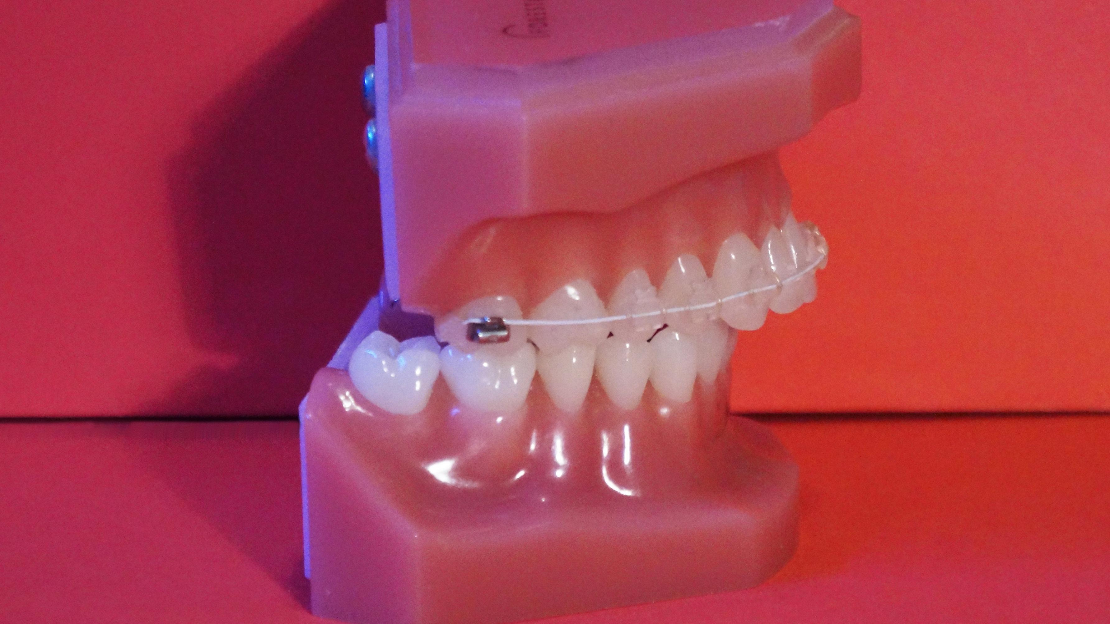 Sobremordida: tengo los dientes superiores adelantados