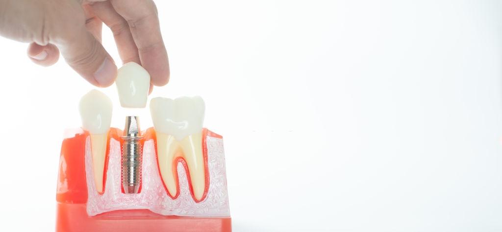 ¿Problemas con un implante dental? ¿Por qué?